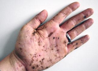 Hand mit Harzflecken